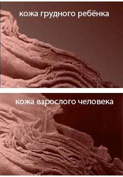кожа, эпидермис